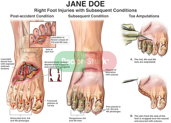 Amputation Of The Foot Or Toe Medical Professionals For